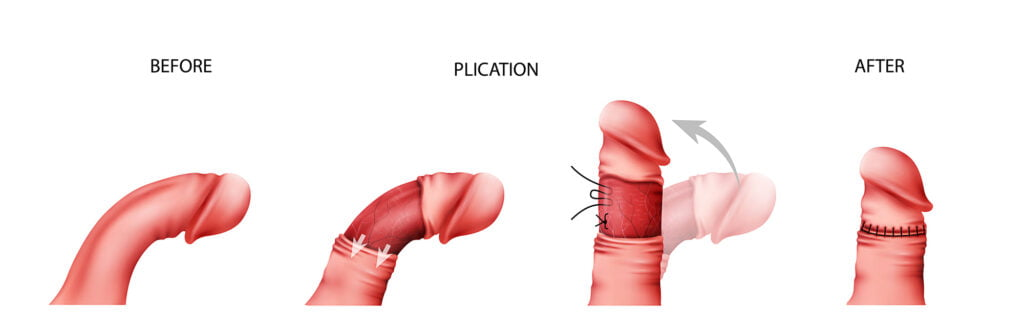 Peyronie's Disease & Plication.